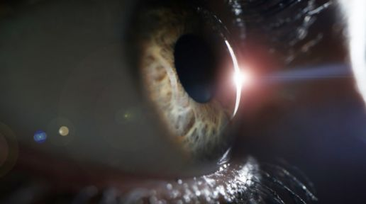 Retinal detachment: what is important to know photo