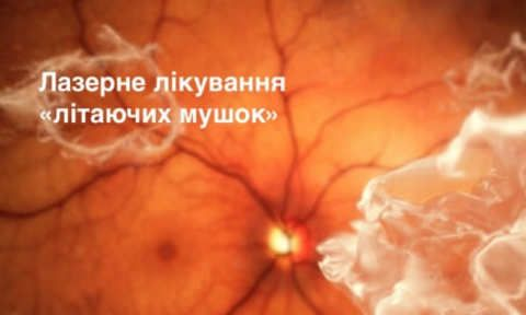 Laser treatment of eye floaters photo