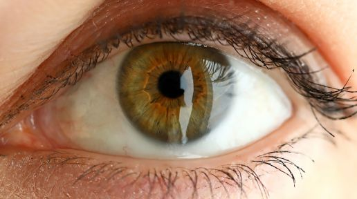 Myths and facts about amblyopia photo
