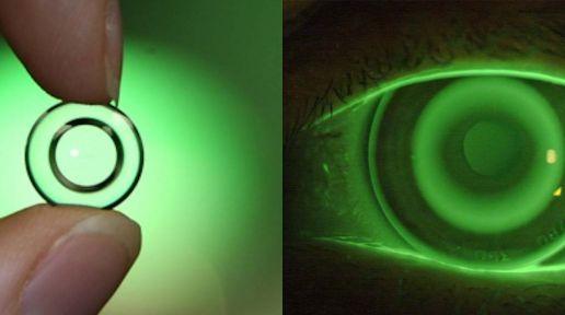 Orthokeratology lenses photo