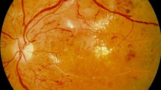 Panretinal photocoagulation (PRP therapy) photo