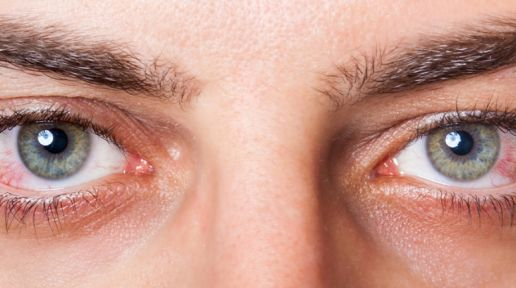 Redness of the eyes - when you need to see a doctor photo