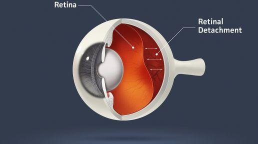 Retinal detachment photo
