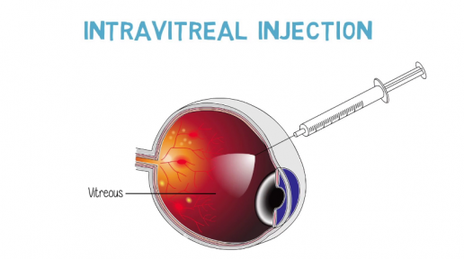 Intravitreal injections for the treatment of diabetic macular edema photo