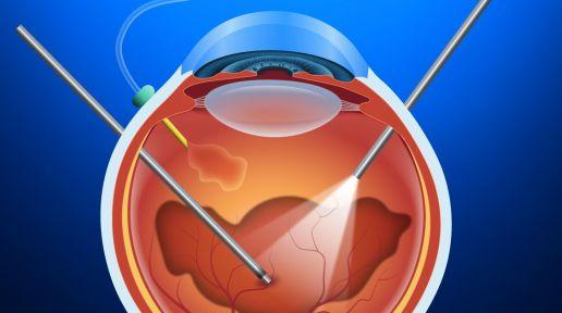 Vitrectomy photo