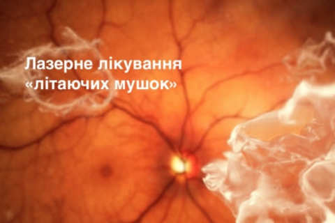 Laser treatment of eye floaters